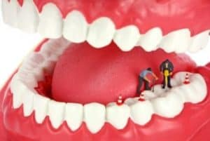 Let's Talk About Tooth Wear