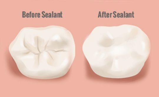 What's the Difference Between Dental Fillings, PRR & Sealants?