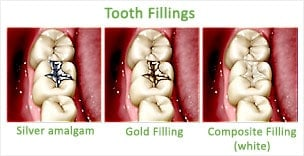 dental fillings Green Bay