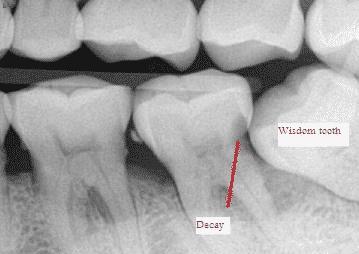 green bay dentist