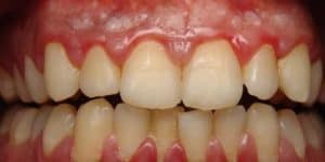 What You Should Know about Gingivitis